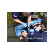 Bleeding Emergencies - EMT